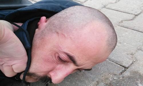Ak Parti saldırganı tutuklandı