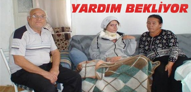 Kocasının Kezzapla Yaktığı Kadın Yardım Bekliyor