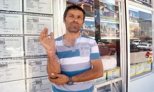 Sigara böreği patladı: 1 yaralı