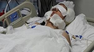 Burun ameliyatında öldü