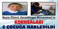 12 Yaşındaki Muhammed'in Korneaları 2 Çocuğa Nakledildi