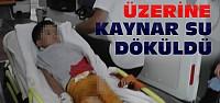 Üstüne Sıcak Çaydanlık Devrilen Çocuk Yaralandı